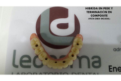 HIBRIDA PEEK1