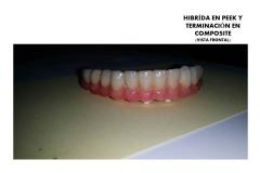 HIBRIDA PEEK2