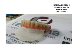 HIBRIDA PEEK3