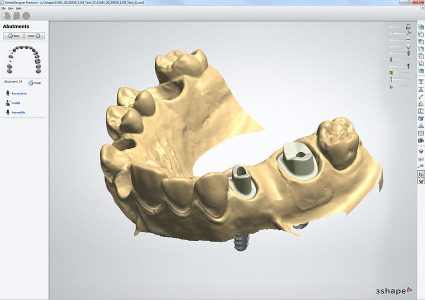 3shape Tooth Library Download